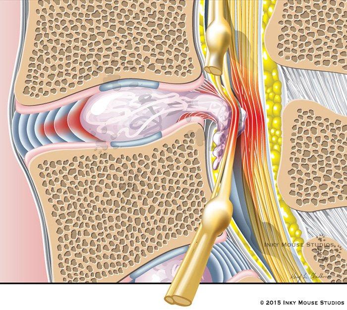 Extrusion of nucleus pulposus in vertebral disc herniation