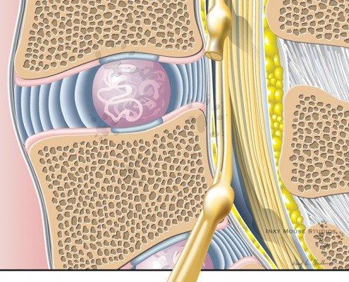 Normal anatomy prior to vertebral disc herniation
